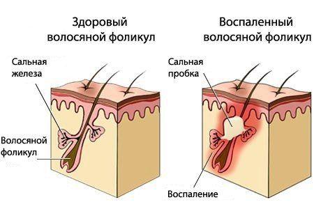 Эффективная борьба с перхотью с шампунем сульсена